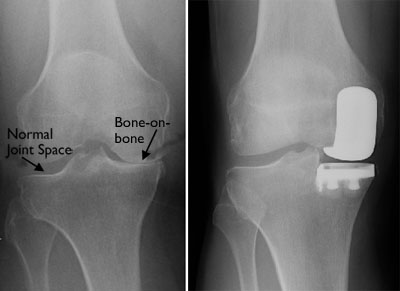 Arthritis affecting only the medial compartment (L) and x-ray showing a partial knee replacement (R)