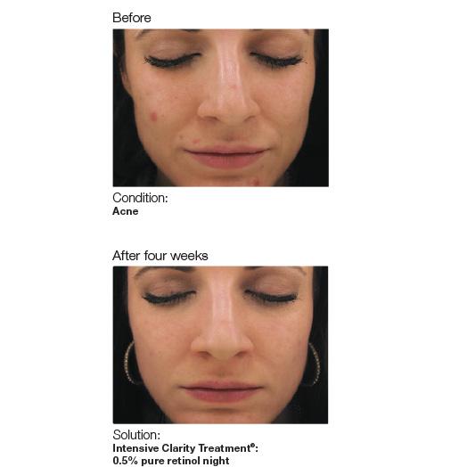 Acne-image5-web.jpg