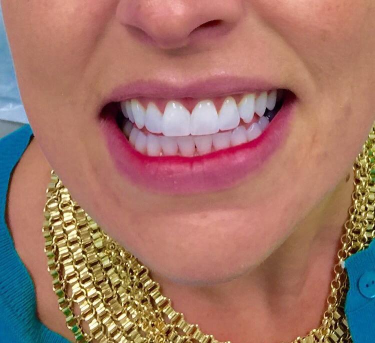 one-hour-teeth-whitening-nyc-ameri-dental-group
