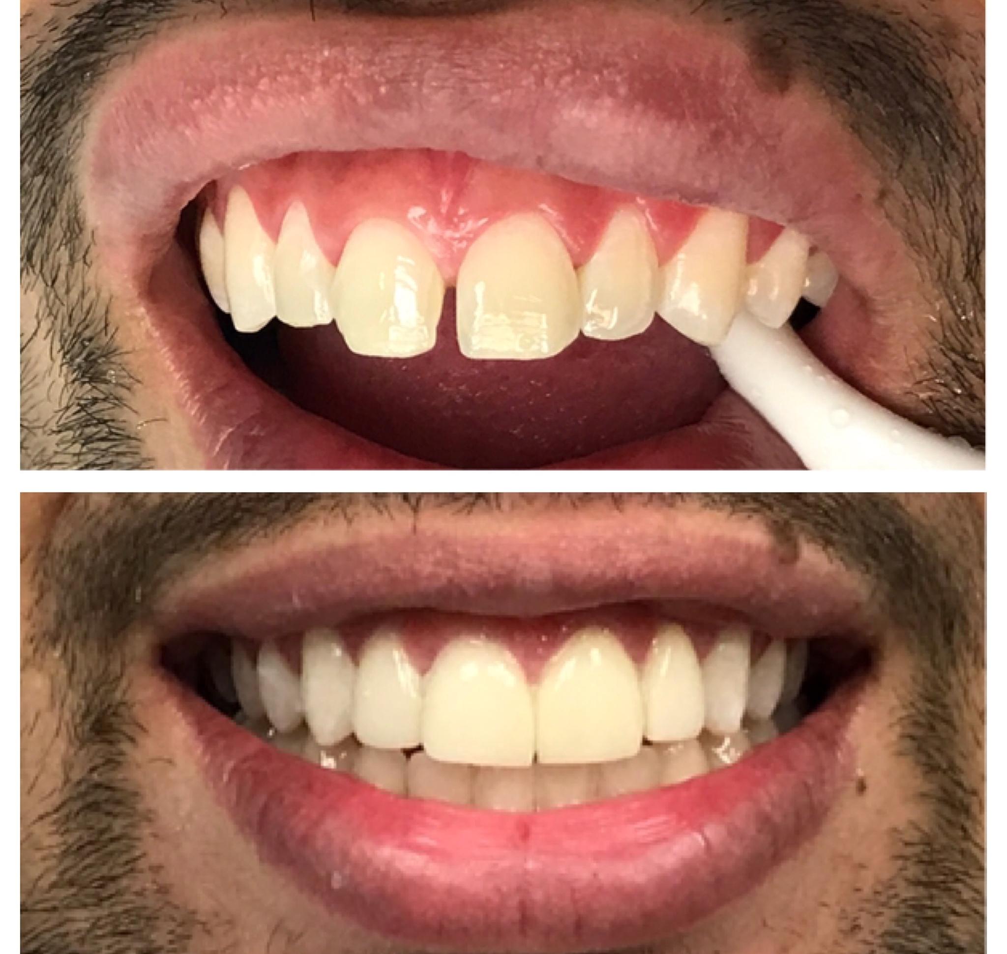 lumineers-smile-transformation-ameri-dental-group-nyc-new-jersey