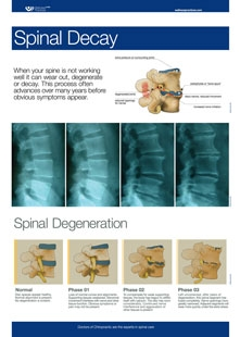 Spinal Decay Wall Chart.jpg