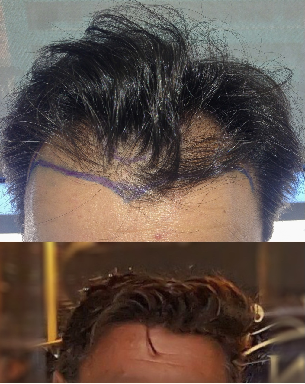 Copy Of Copy Of Results Dr Bruno Ferreira Leading Edge Hair Transplant Surgery