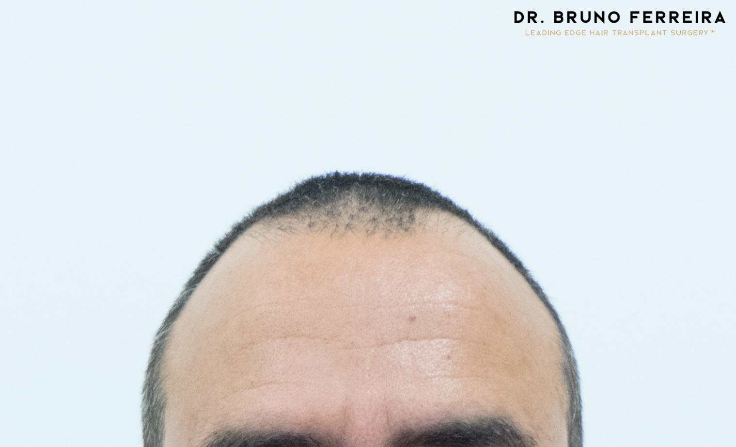 00000 DR. BRUNO FERREIRA (Case 1) - Before - 1.jpg