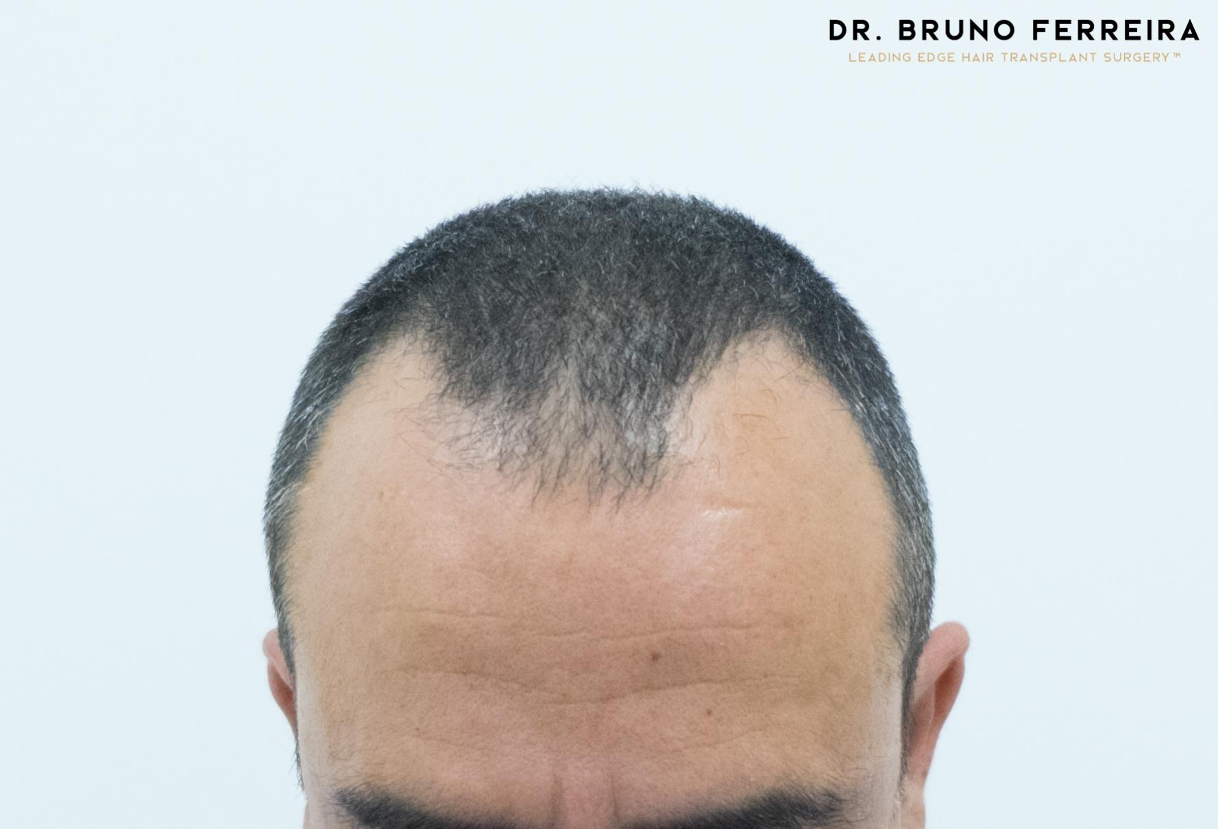 00001 DR. BRUNO FERREIRA (Case 1) - Before - 2.jpg