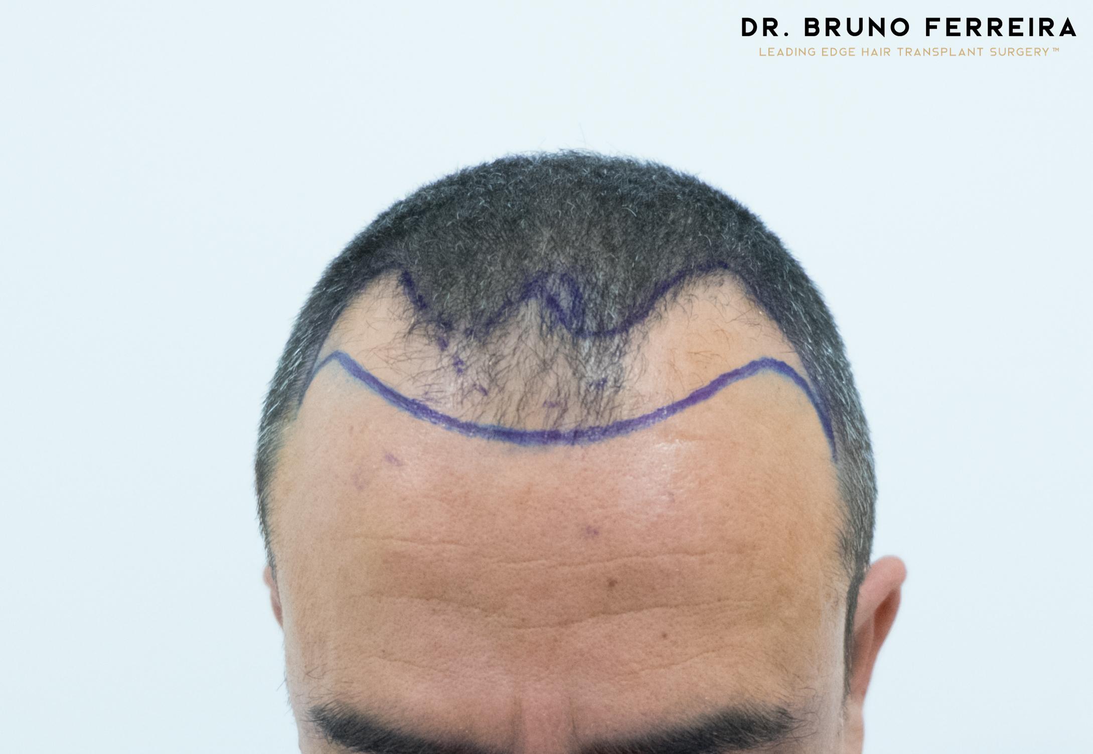 00003 DR. BRUNO FERREIRA (Case 1) - Before - 4.jpg