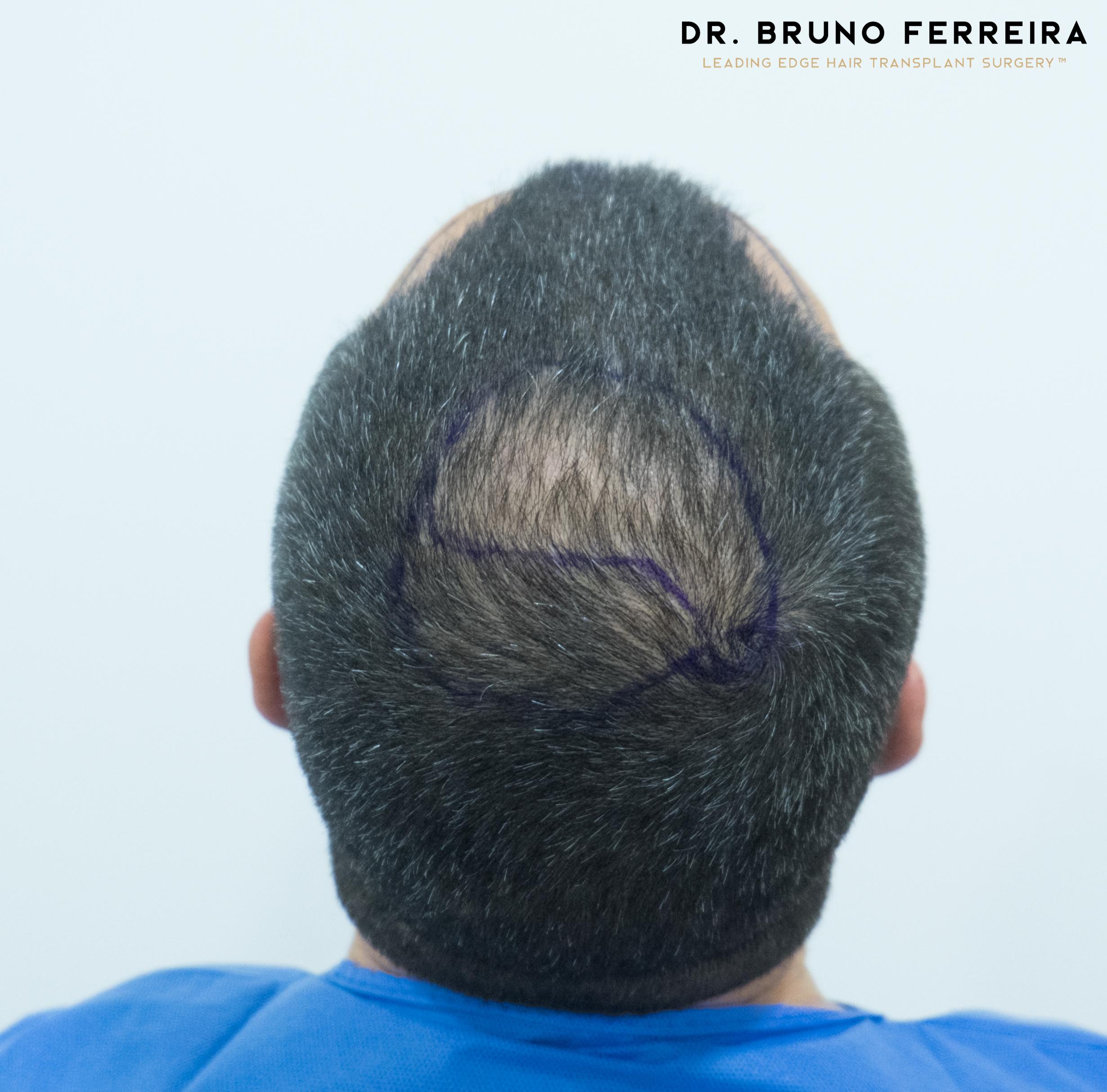 00002 DR. BRUNO FERREIRA (Case 1) - Before - 3.jpg