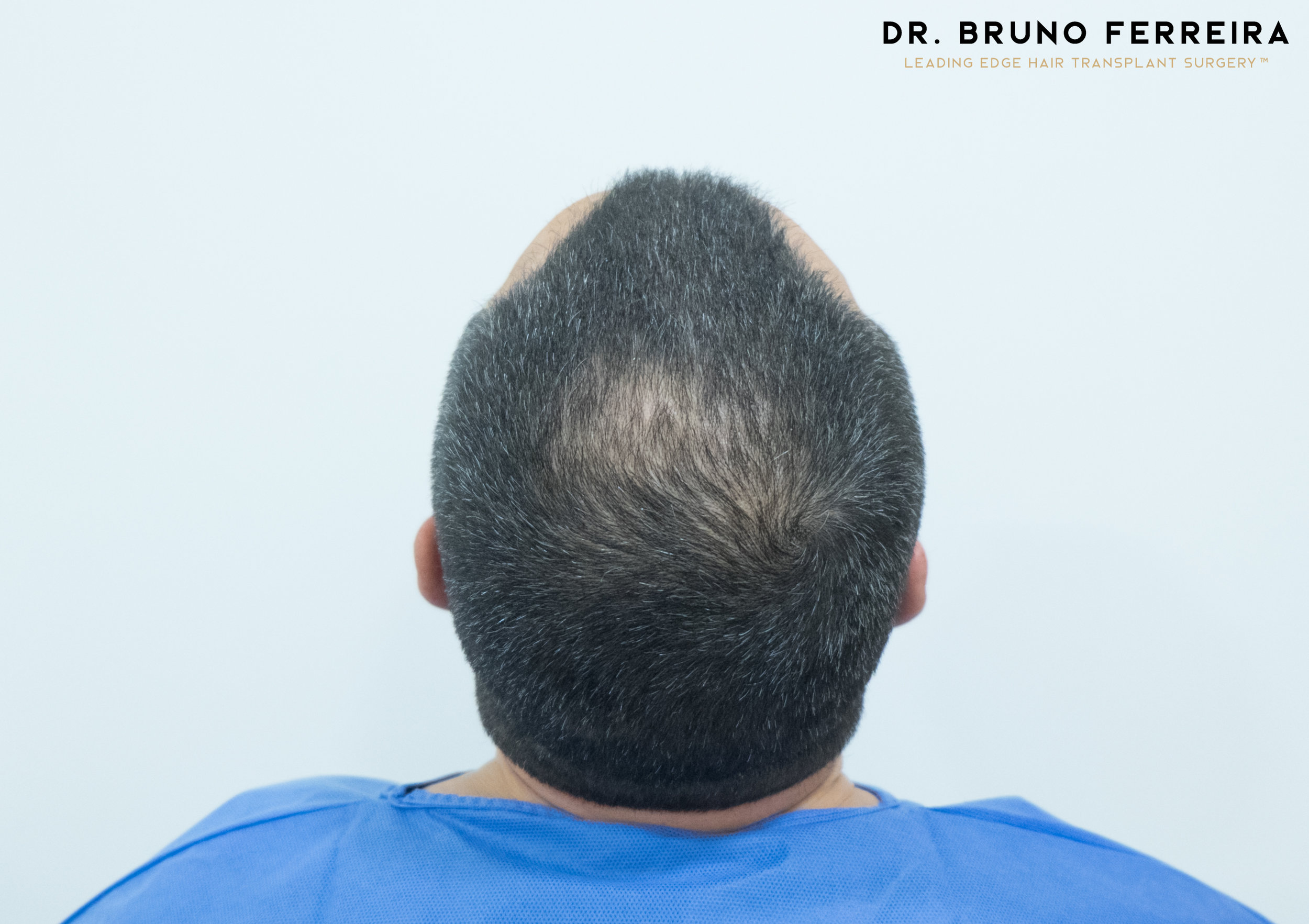 00004 DR. BRUNO FERREIRA (Case 1) - Before - 5.jpg