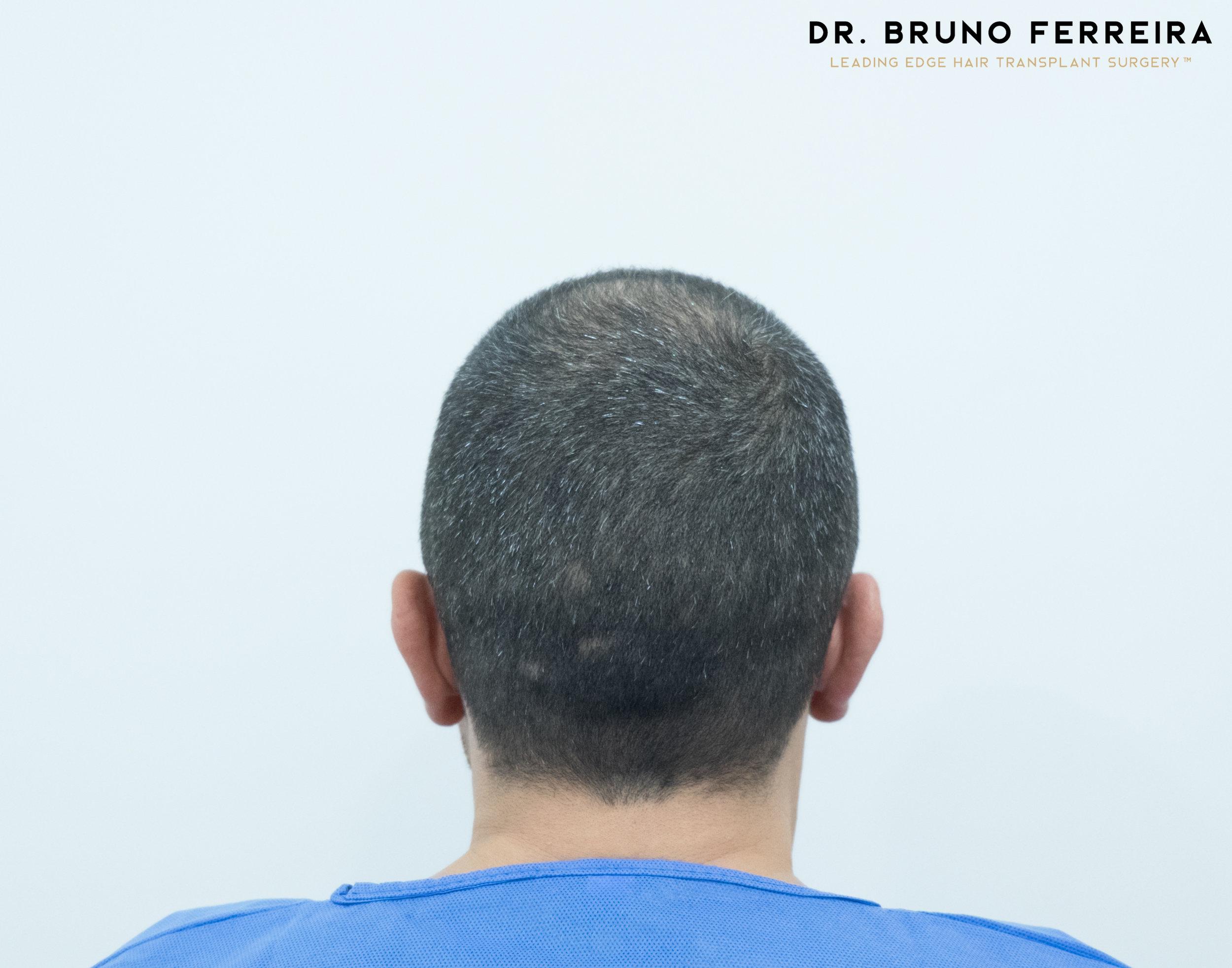 00005 DR. BRUNO FERREIRA (Case 1) - Before - 6.jpg