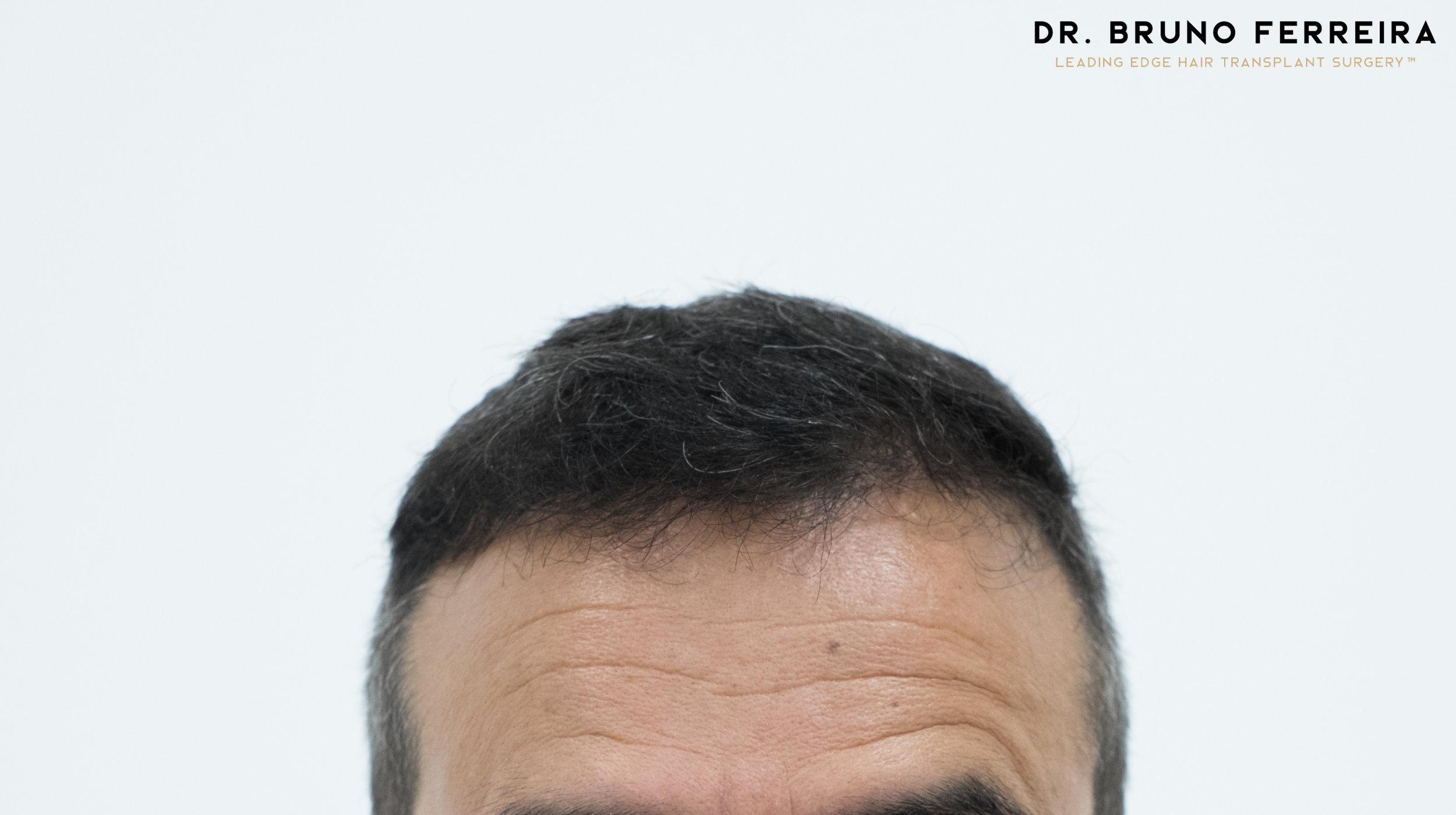 00016 DR. BRUNO FERREIRA (Case 1) - 8 months - 1.jpg