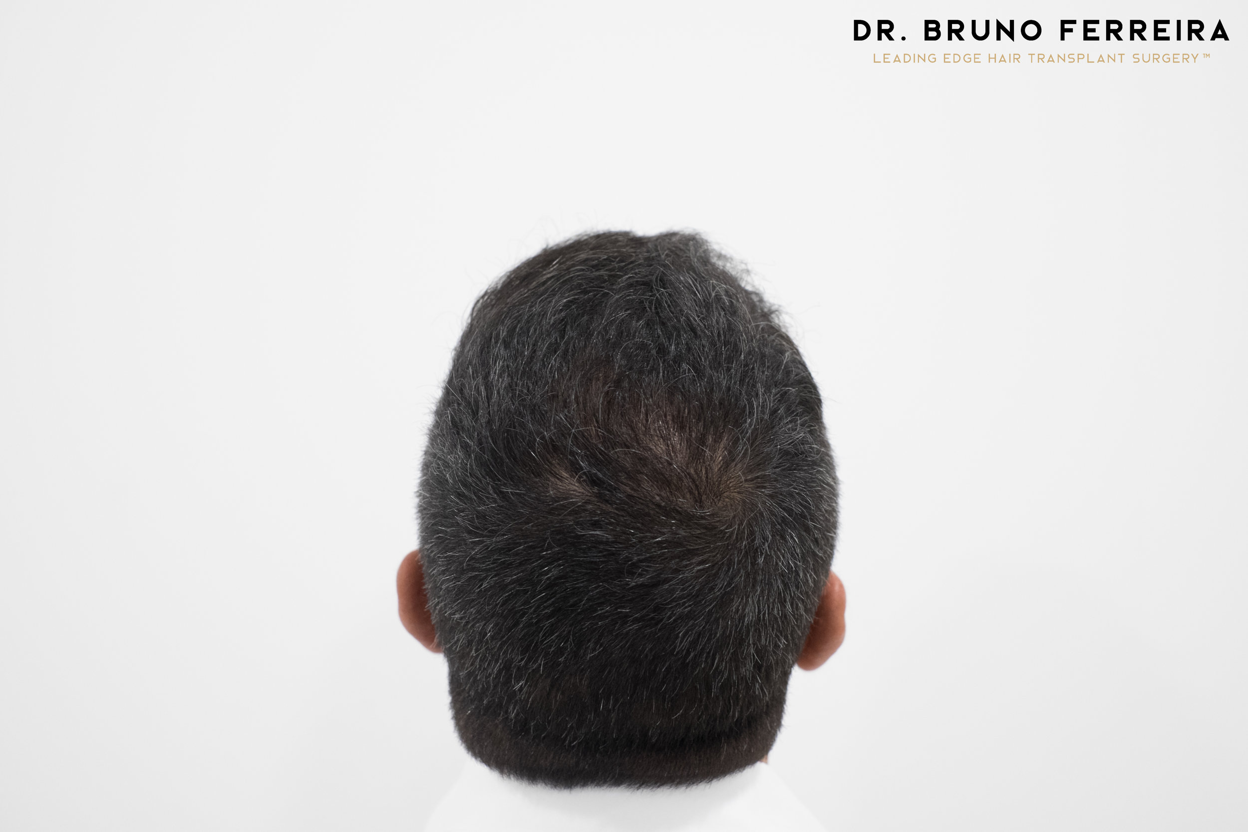 00017 DR. BRUNO FERREIRA (Case 1) - 8 months - 2.jpg