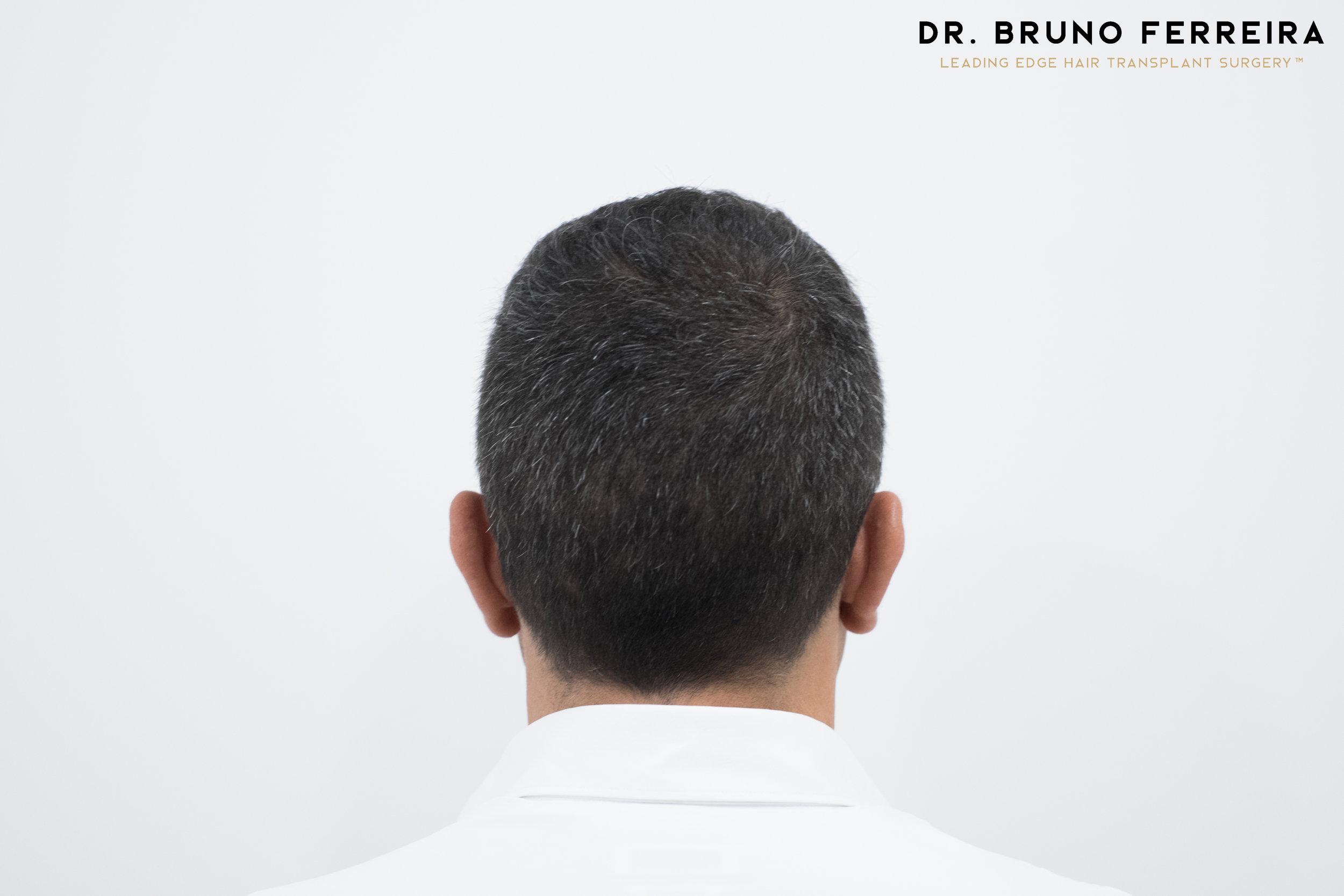00018 DR. BRUNO FERREIRA (Case 1) - 8 months - 3.jpg