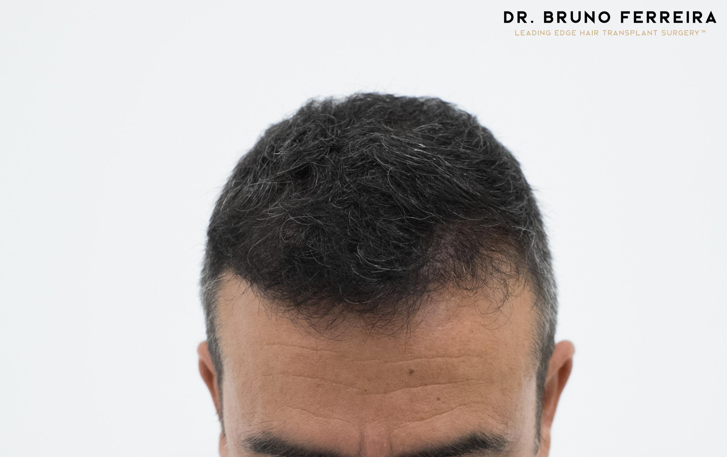 00019 DR. BRUNO FERREIRA (Case 1) - 8 months - 4.jpg