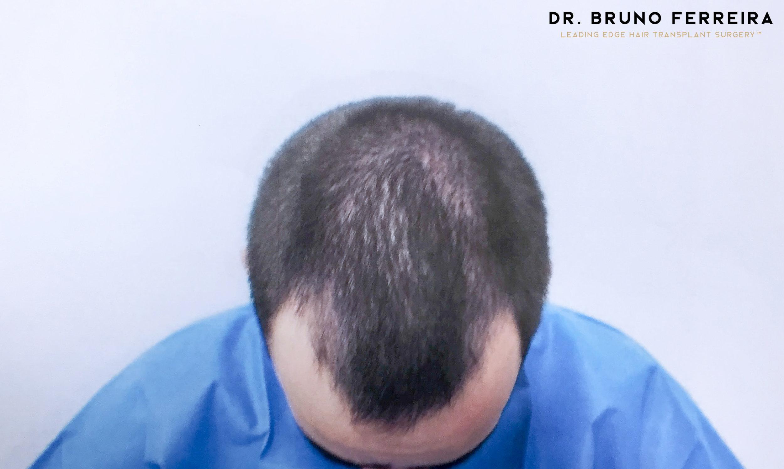 Dr. Bruno Ferreira - Case 4- Before - 2.jpg