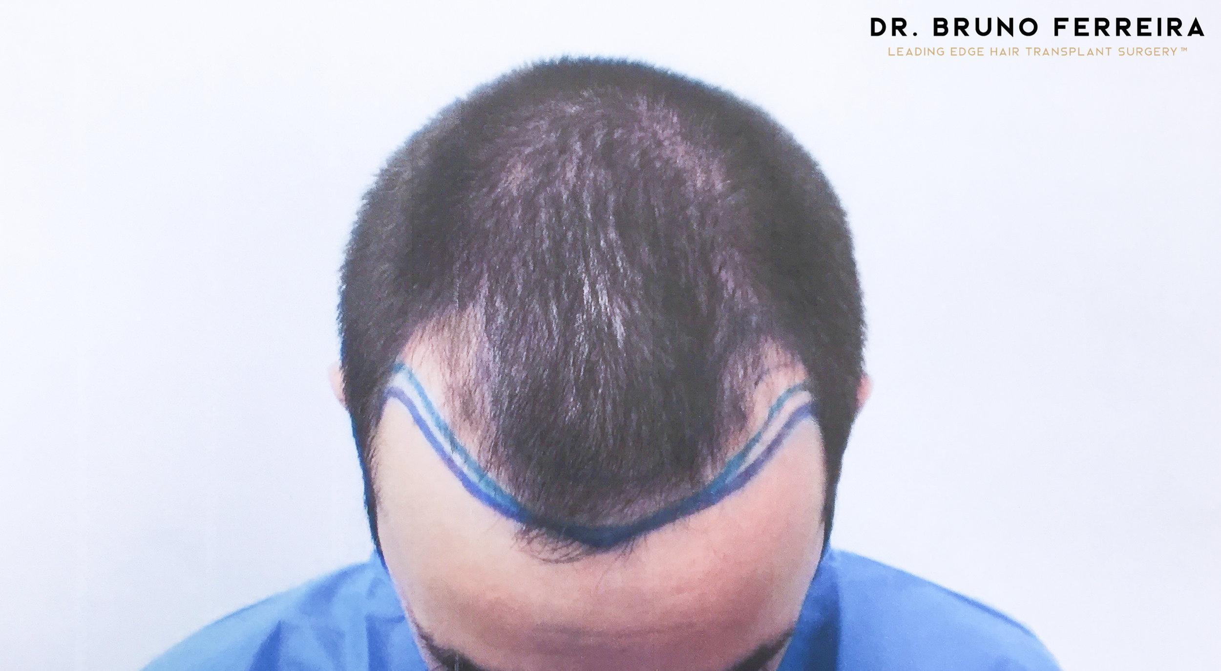 Dr. Bruno Ferreira - Case 4- Before - 1.jpg