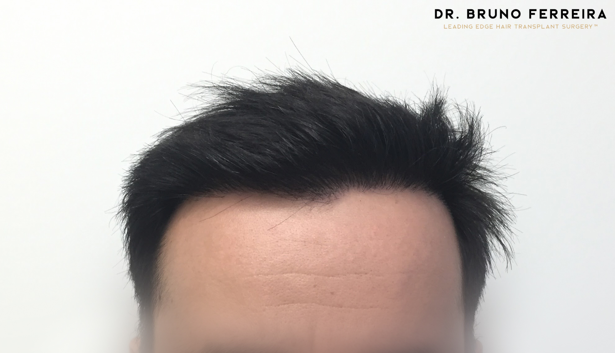 Dr. Bruno Ferreira - Case 4- After - 4.jpg