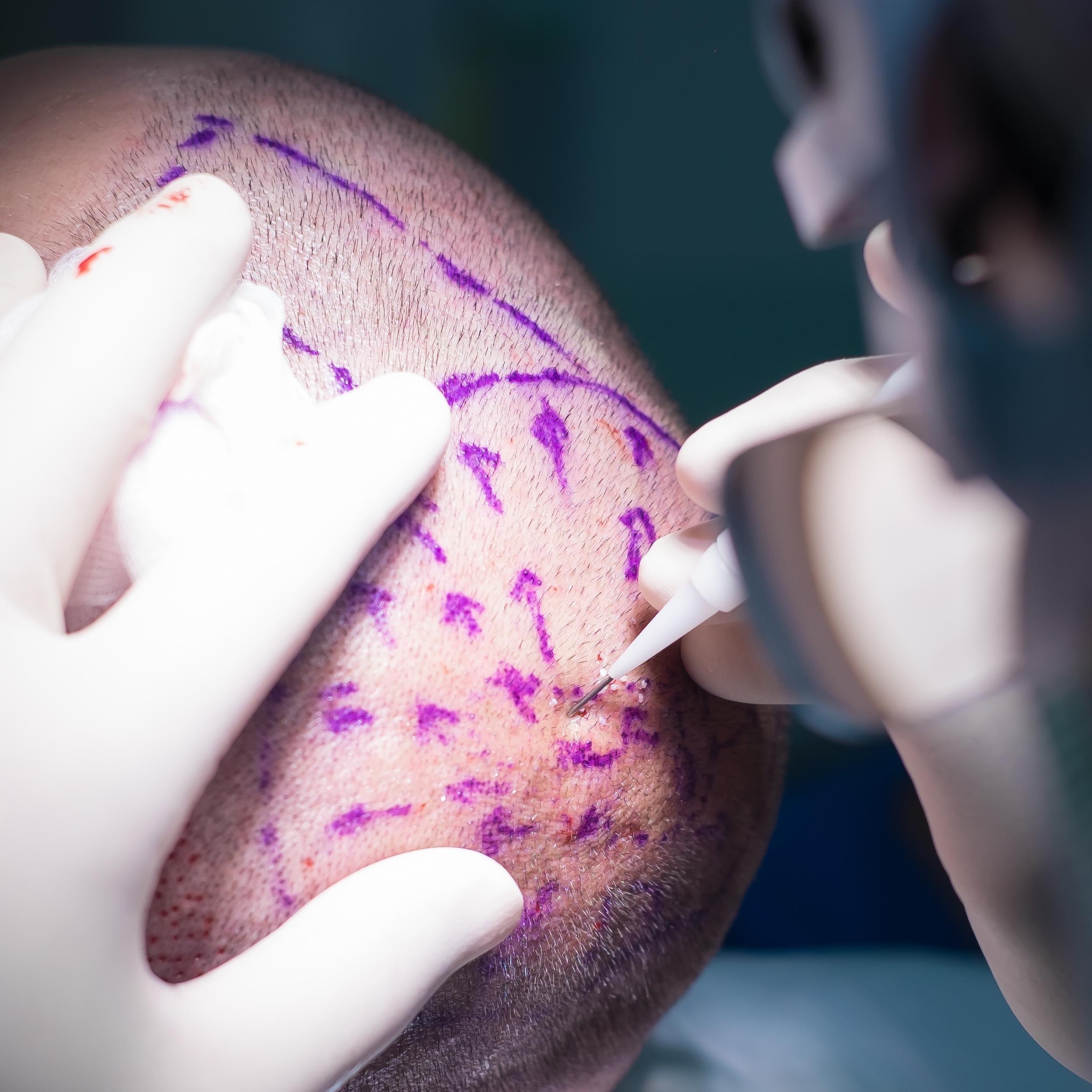 Implantation -