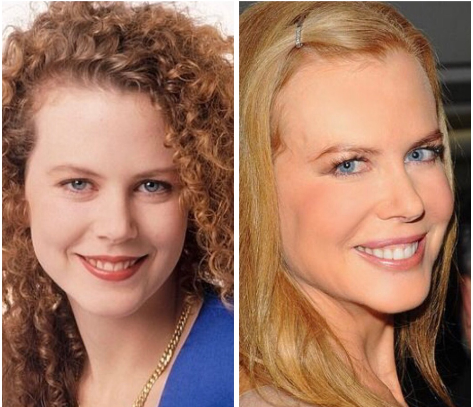 Actress Nicole Kidman ages beautifully. In these photos, the obvious difference (besides hairstyle)  are largely due to changes in  facial fat distribution (less fat in the temples, forehead, and sides of face).