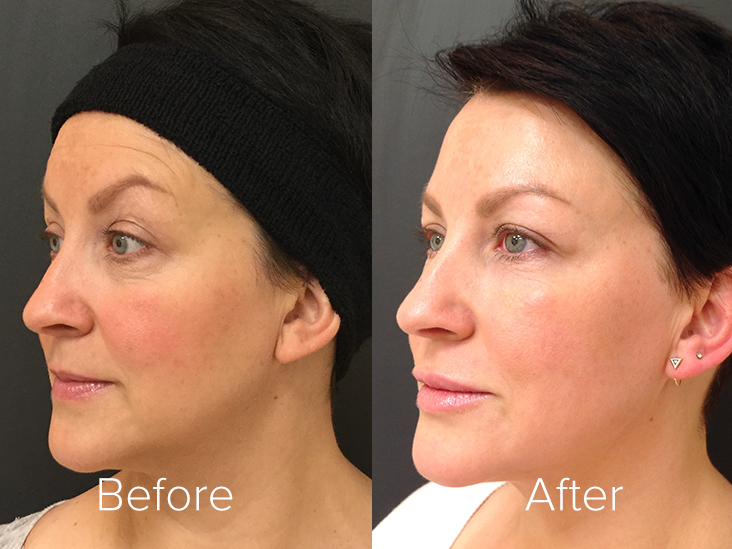 botox-before-after-thermae.jpg