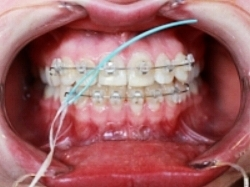 It is necessary to floss at least once a day. Floss threader and special kind of floss that is designed specifically for orthodontic patients
