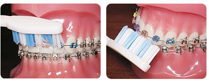 It is better to use a soft-bristle toothbrush. Soft bristles can adapt better to the surface of the tooth