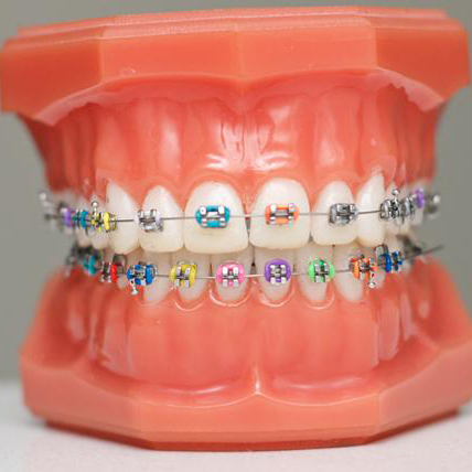 What is orthodontics and who is an Orthodontist