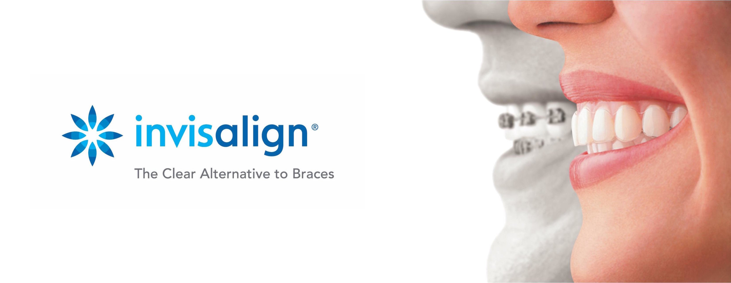 Invisalign™ uses a series of invisible, comfortable, and removable aligners that remain invisible