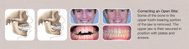 What are the rewards of having orthognathic surgery
