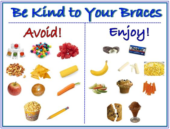 Foods that should be avoided with braces