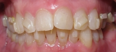 Invisalign aligners can only push to move teeth.