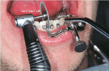 This procedure is used for both braces and Invisalign