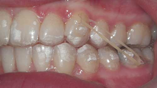 there may a need to wear elastics throughout treatment