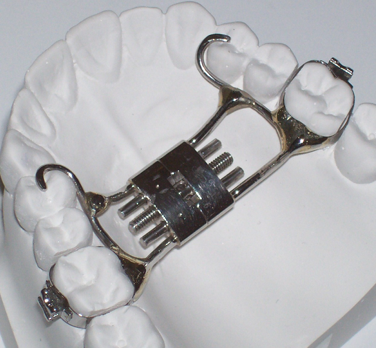 The palatal expander expands and makes your upper jaw wider