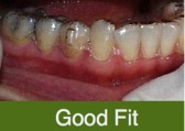 Your aligners should have no visible space seen between the edge of the teeth