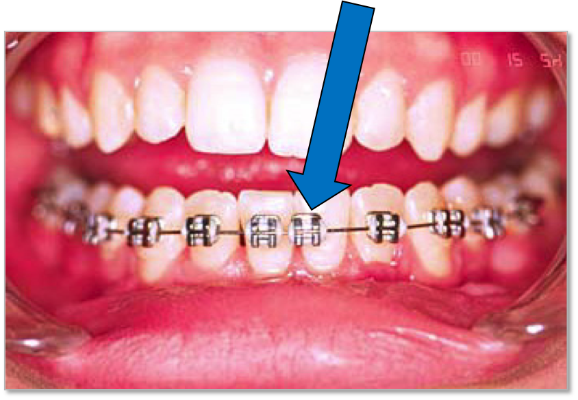 bonding material that holds the braces on your teeth, a brace may loosen