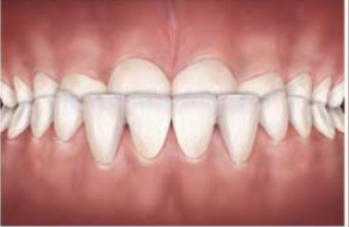 An under bite is a dental condition where the bottom teeth overlap the top teeth