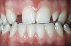 It is important to have missing teeth in your smile corrected