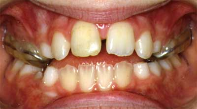 Diastema (space) occurring after expansion. This is a very typical side effect of expansion that is later fixed with braces.