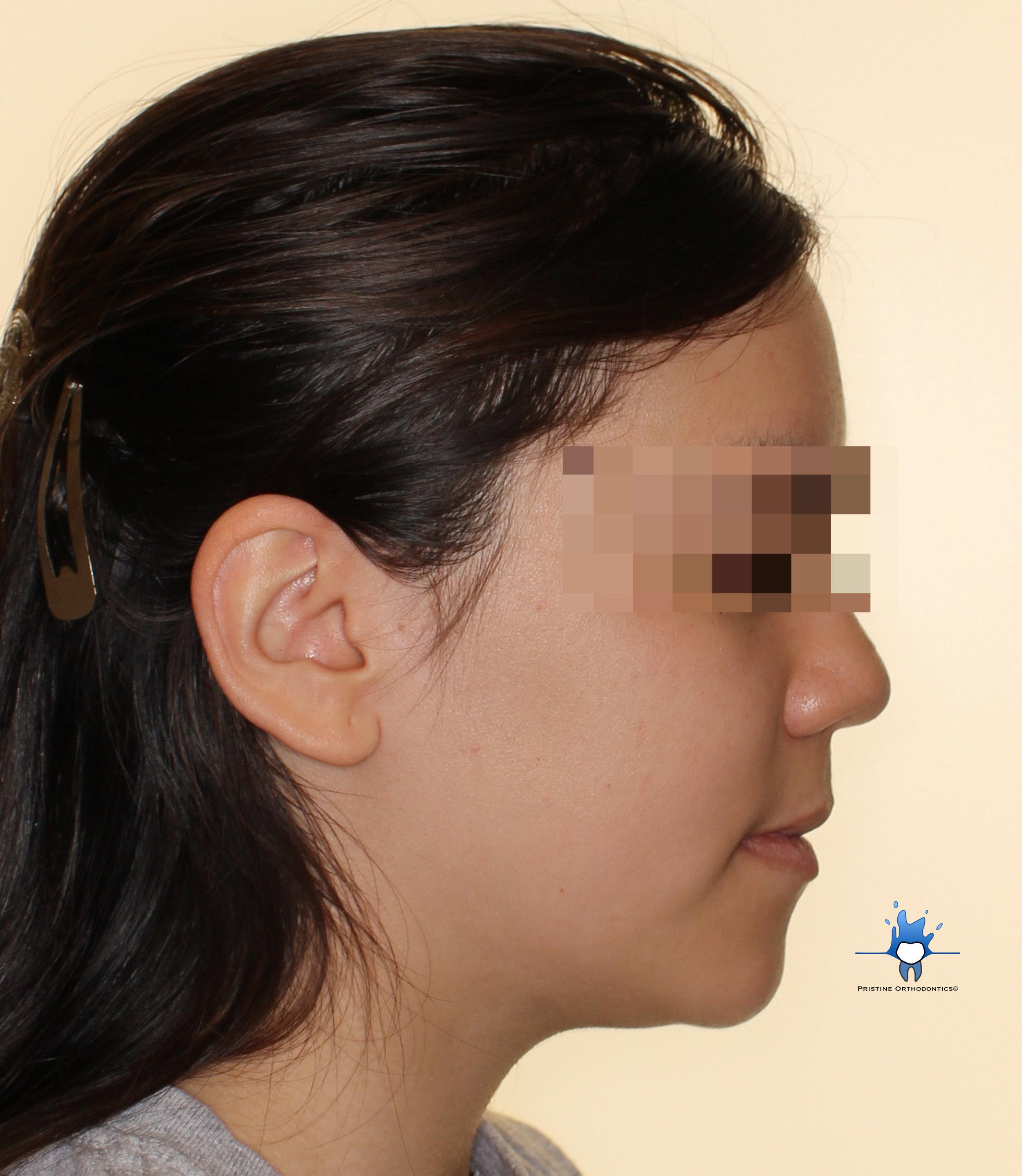facial profile.jpg