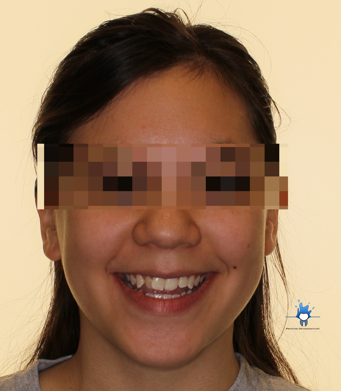 Facial front smiling.jpg