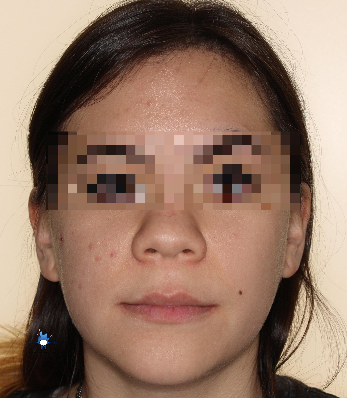 facial front.jpg