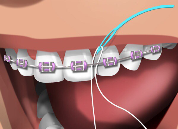 Floss threader with floss. 1) Loop floss through the threader; 2) Direct floss around the tooth and below where the teeth contact each other on both sides for proper flossing technique