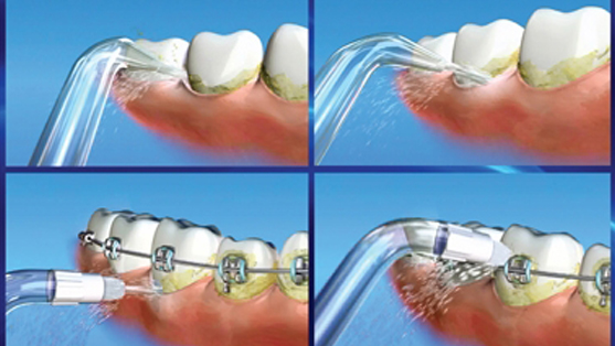 Waterpik water flosser and its application around braces and around the gumline.