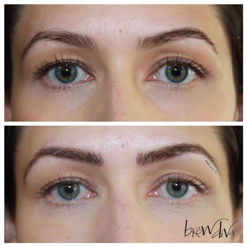 Microblading before and after 3-1