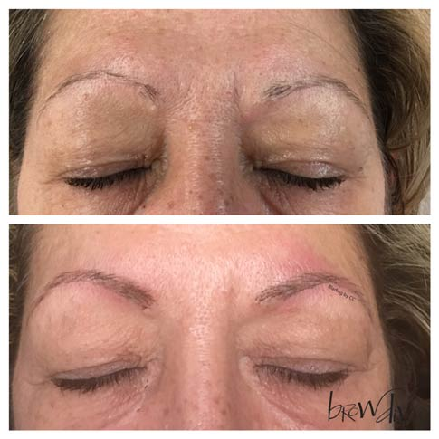 Microblading before and after 8