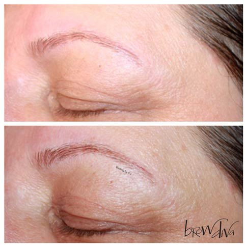 12.-Microblading-Before-&-After---Brow-Diva.jpg