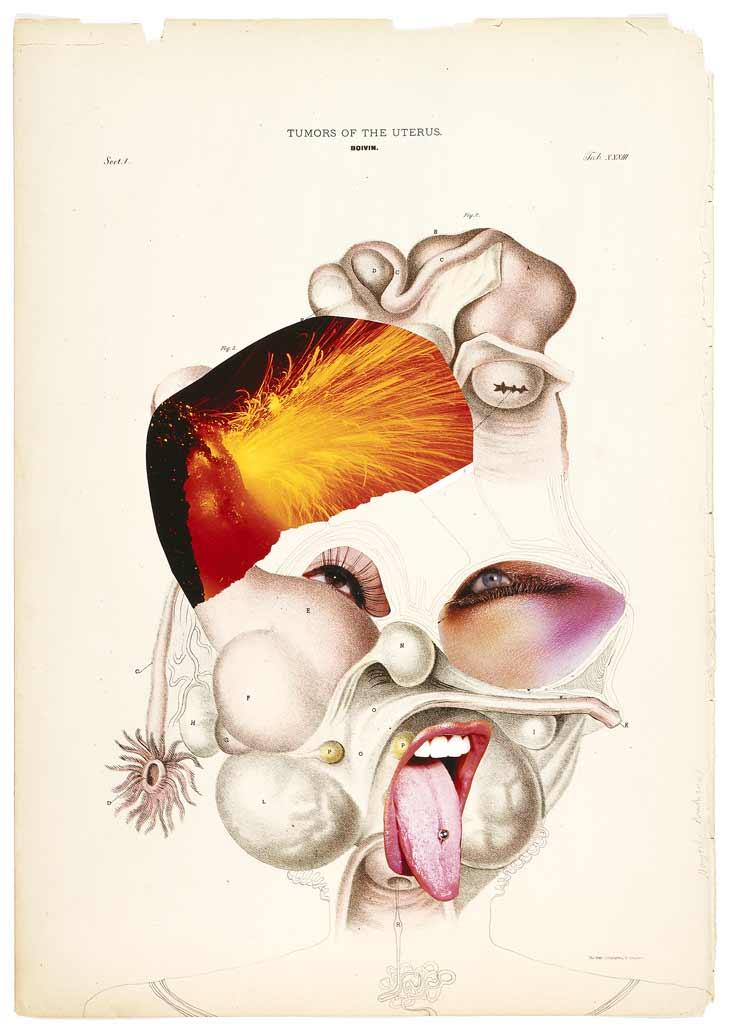 Tumors of the Uterus