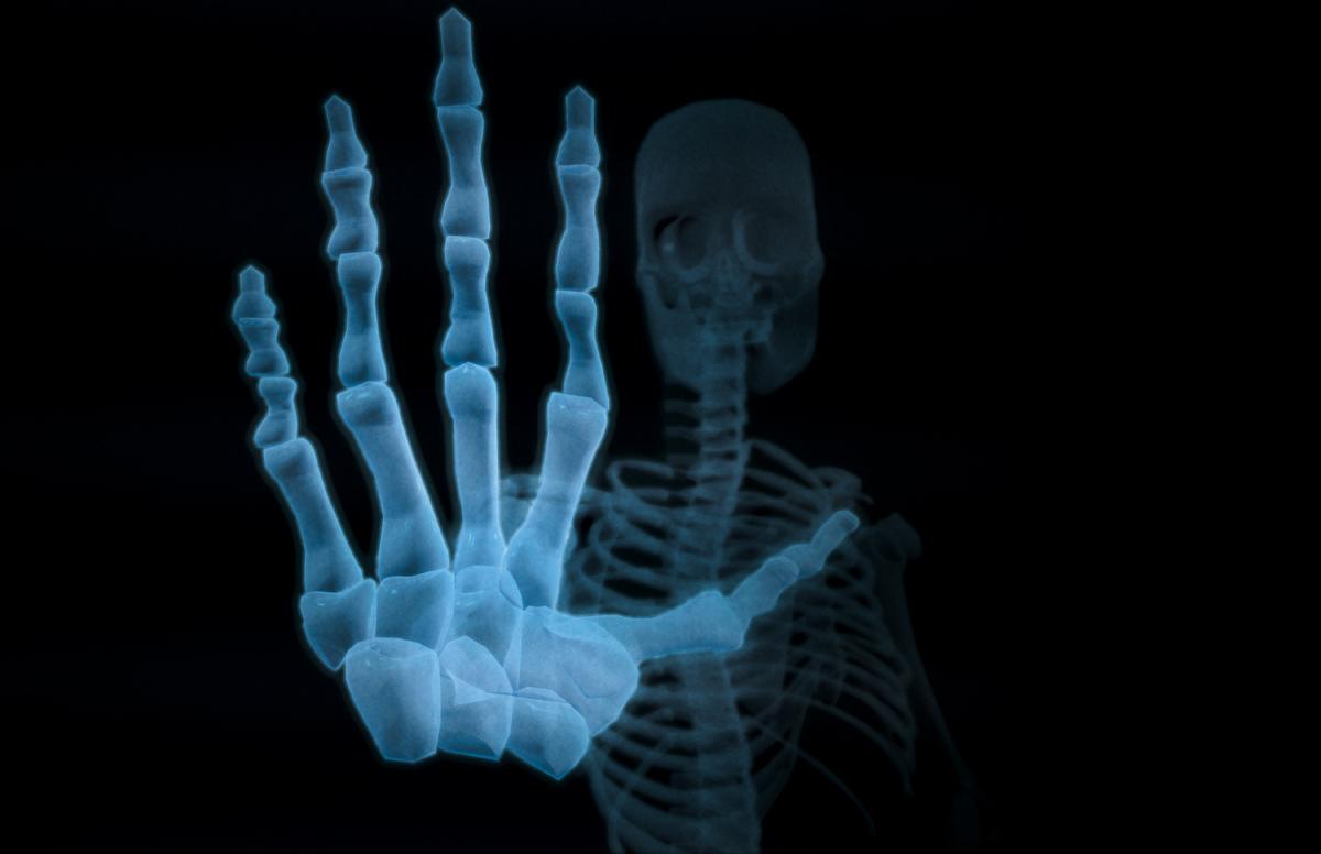 SkelStop.jpg