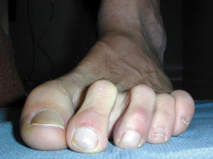 Hammer Toe -