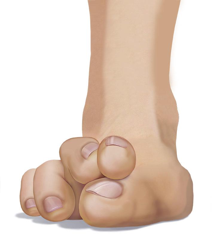 Lesser Toe Hammer-Claw-Mallet Toe -