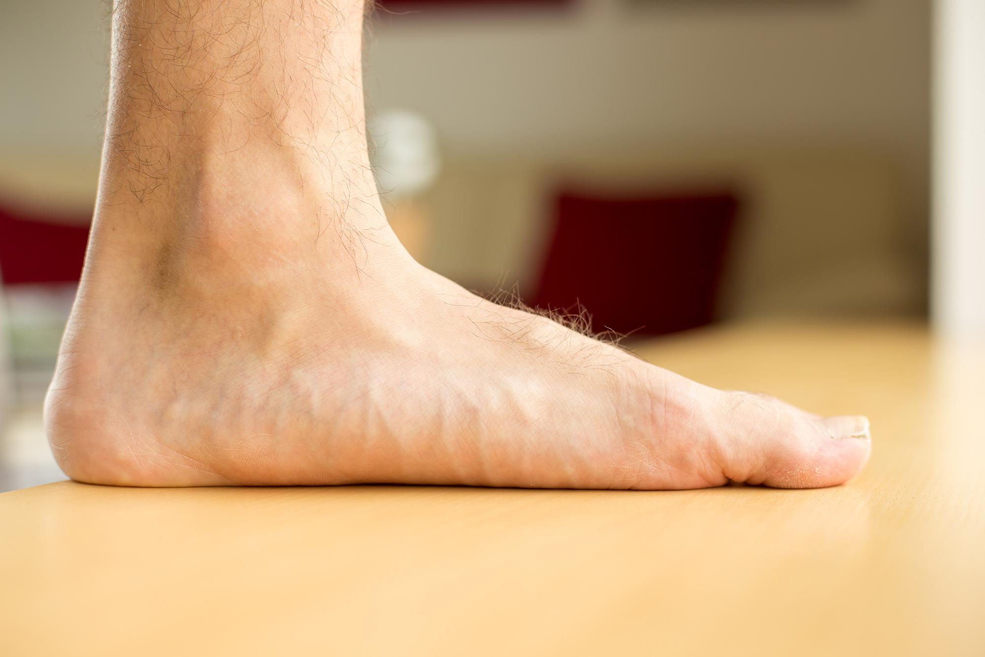 Flat Feet -